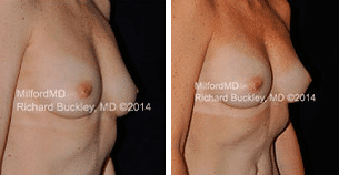 Breast Augmentation Scranton PA