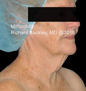 Before Liposuction Neck Lift