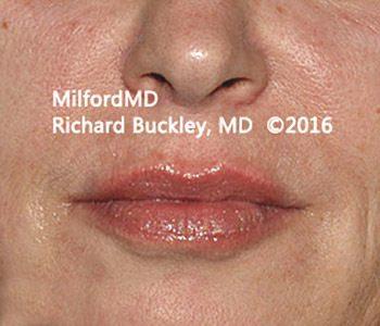 After Restylane® Lip Augmentation