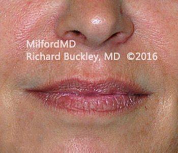 Before Restylane® Lip Augmentation