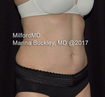 After CoolSculpting® Abdomen, Flanks & Love Handles