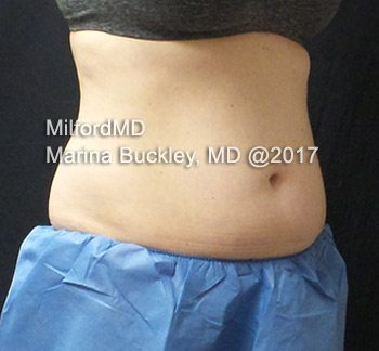 Before CoolSculpting® Abdomen, Flanks & Love Handles