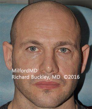 After Restlyane® Facial Filler