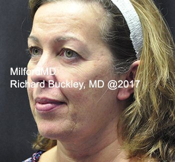 After Liposuction Neck Lift