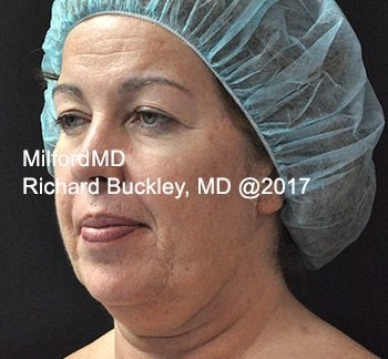 Before Liposuction Neck Lift
