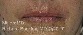 After Restlyane® Silk Lip Augmentation