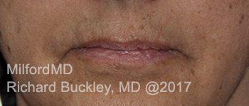 Before Restlyane® Silk Lip Augmentation