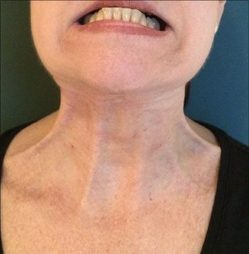 After ThermiRase® Neck Band Relaxation