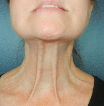 Before ThermiRase® Neck Band Relaxation