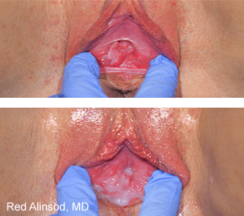 Before ThermiVa® Vaginal Tightening