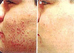 Microdermabrasion and Acne