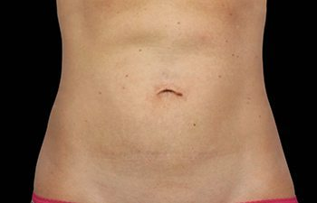 After CoolSculpting® Abdomen