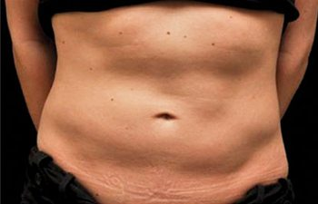 Before CoolSculpting® Abdomen