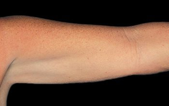 After CoolSculpting® Arms
