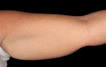 Before CoolSculpting® Arms