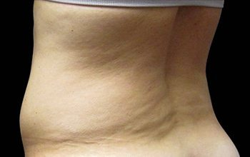 Before CoolSculpting® Back