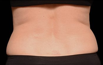 After CoolSculpting® Back