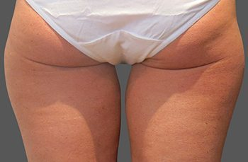 Before CoolSculpting® Thighs