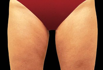After CoolSculpting® Thighs