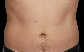 After CoolSculpting® Male Abdomen