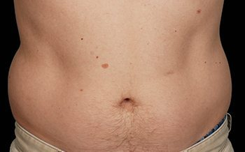 Before CoolSculpting® Male Abdomen