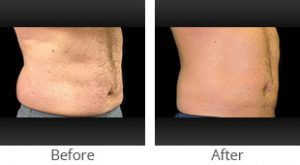 CoolSculpting® Male Abdomen - Case #35915