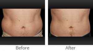CoolSculpting® Male Abdomen - Case #35916