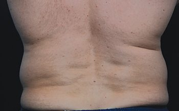 Before CoolSculpting® Male Back