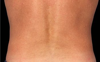 After CoolSculpting® Male Back
