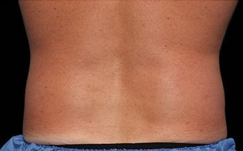 After CoolSculpting® Male Back & Love Handles