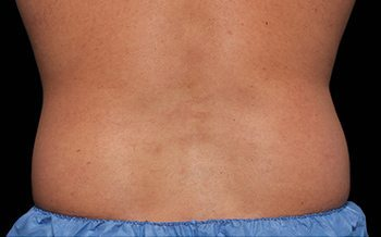 Before CoolSculpting® Male Back & Love Handles