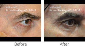 Laser Periocular Facial Veins Treamtnet - Case #36126