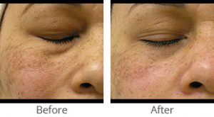 HydraFacial MD® - Case #35929