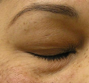 Before HydraFacial MD® Treatment