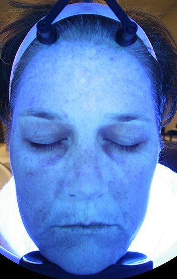After HydraFacial MD® Treatment
