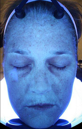 Before HydraFacial MD® Treatment
