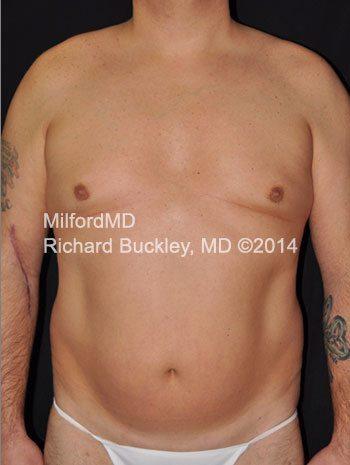 Male Laser LipoSculpture Abdomen - Case #35949 | MilfordMD