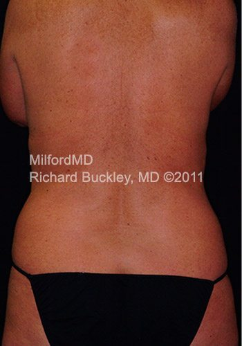 Before Laser LipoSculpture