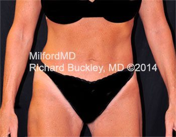 After Laser LipoSculpture