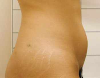 Before SmartLipo Triplex™