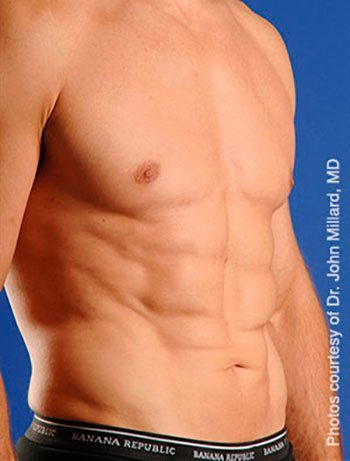 After SmartLipo Triplex™