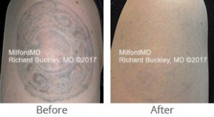 Laser Tattoo Removal - Case #36134