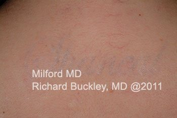 After Laser Tattoo Removal