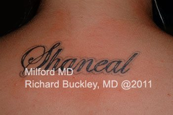 Before Laser Tattoo Removal