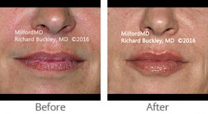 Lip Augmentation Before & After - Case #35989