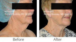 Liposuction Neck Lift - Case #36148