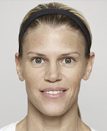 After Dysport® Wrinkle Reduction