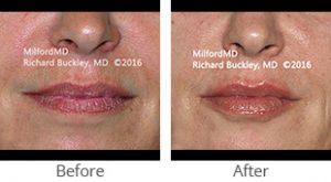 Restylane® Lip Augmentation - Case #36125