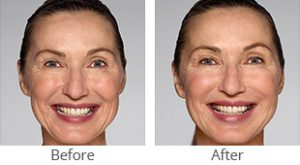 Restylane® Refyne/Defyne Facial Filler - Case #36153