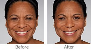 Restylane® Refyne/Defyne Facial Filler - Case #36154